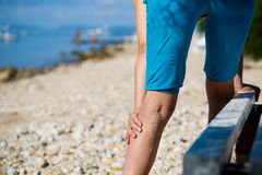 Painful varicose veins Royalty Free Stock Photos