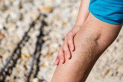 Painful varicose veins Stock Images