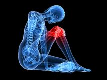 Painfull knee Royalty Free Stock Photography