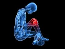 Painfull knee Stock Photography