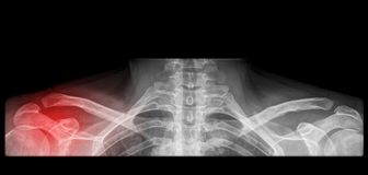 Painfull shoulder surgery on x-ray Royalty Free Stock Photos
