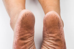 A pair of badly cracked heels apart Stock Image