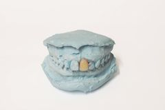 Pair of dental plaster molds Royalty Free Stock Photography