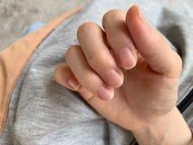 palce kobieta są susi gwóźdź krawędź są płatkowaci, Muszą stosować kremowej, Suchej skóry alergia, fotografia stock