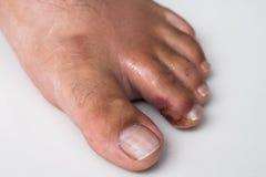 Palec na nodze Ropiasta rana na nodze egzema dermatologiczny łuszczyca fotografia royalty free