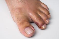 Palec na nodze Ropiasta rana na nodze egzema dermatologiczny łuszczyca obraz royalty free
