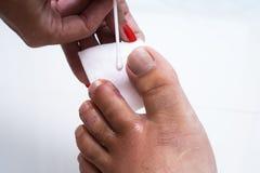 Palec na nodze Ropiasta rana na nodze egzema dermatologiczny łuszczyca zdjęcie stock