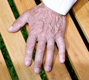 The palms of wrinkled hands of an elderly man Stock Photos