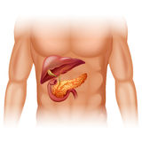 Pancreas cancer diagram in detail Stock Photography