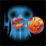Pancreas cancer diagram in detail Royalty Free Stock Images