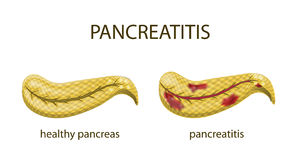 Pancreas healthy and pancreatitis Royalty Free Stock Image