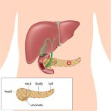 Pancreatic cancer. And diagram of parts of the pancreas, eps10 Royalty Free Stock Photo