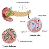 Pancreatic islet. Normal and type 1 diabetic, eps8 Royalty Free Stock Photo