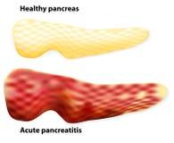 Pancreatitis Οι διαφορές μεταξύ του υγιών πάγκρεατος και του infla ελεύθερη απεικόνιση δικαιώματος