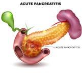 Pancreatitis διανυσματική απεικόνιση