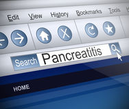 Pancreatitis concept. Stock Photo
