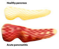 Pancreatitis. The differences between healthy pancreas and infla Royalty Free Stock Image