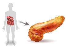 Pancreatitis illustration Stock Photography