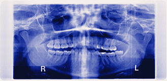 panorama of damaged jaw erosion of the joint TMJ royalty free stock photos