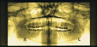 panorama de la erosión dañada del mandíbula del amarillo de la junta TMJ Imagen de archivo