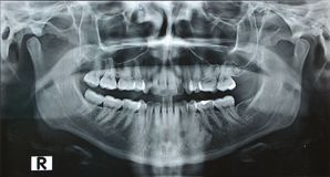 Panorama dental jaw x ray right. Panorama jaw x ray right of young woman Stock Images