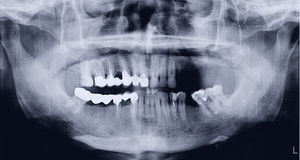 Panorama- röntgenstråle av munnen Arkivfoton
