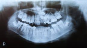Tand- röntga - allvarlig deformering arkivbild
