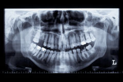 Panorama x-ray image of a human jaw Royalty Free Stock Image