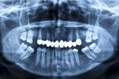 Panorama x-ray image of a human jaw Stock Photos