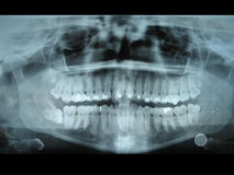 Panoramic dental radiology slide. From my jaw.  This slide helps dentists know the position of teeth and molars. This is a special slide as you can see bracket Royalty Free Stock Photo