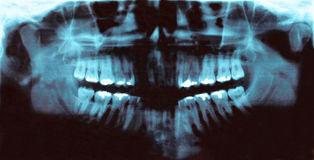 Panoramic dental radiology slide Stock Image