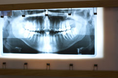 Panoramic Dental X-ray. Panoramic dental radiology on a lighted frame royalty free stock photography