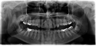 Panoramic dental x-ray. Panoramic x-ray picture of a mouth / teeth of young woman Stock Photography