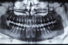 Panoramic dental X-ray. Full mouth panoramic dental X-ray of a 29 year old male. Wisdom teeth are visible, one is missing royalty free stock photo