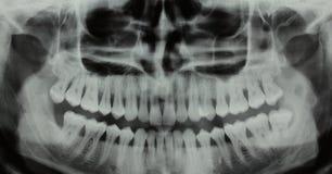 Panoramic dental X-ray - one wisdom teeth missing. Full mouth panoramic dental X-ray of a 29 year old male. Wisdom teeth are visible, one is missing Stock Photos