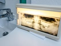 Panoramic dental X-Ray photo of middle aged man. One teeth missing royalty free stock photo