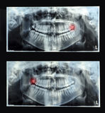 Panoramic dental x-ray with superior upper wisdom tooth (eight. Tooth) shown red. Double x-ray In the picture there no noise, it's the the royalty free stock photos