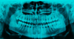 Panoramic dental X-ray - 31 teeth cyan color royalty free stock photos