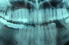 Dental Xray x-ray. Panoramic dental X-Ray, teeth and head radiography Royalty Free Stock Photo