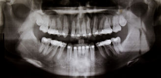 Panoramic dental X-Ray Royalty Free Stock Images