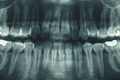 Panoramic dental X-Ray Stock Photos