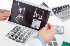 Panoramic dental X-Ray in hand. Royalty Free Stock Photo