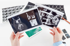 Panoramic dental X-Ray in hand. Stock Photography