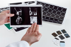 Panoramic dental X-Ray in hand. Stock Images
