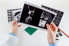 Panoramic dental X-Ray in hand. Royalty Free Stock Photos