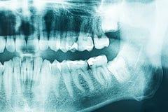 Panoramic Dental X-Ray Stock Image