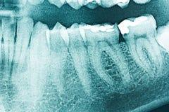 Panoramic Dental X-Ray Royalty Free Stock Photos