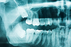 Panoramic Dental X-Ray Royalty Free Stock Photography