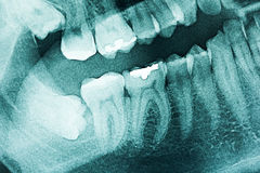 Panoramic Dental X-Ray Royalty Free Stock Image