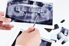 Panoramic dental x-ray image of teeth. Royalty Free Stock Image